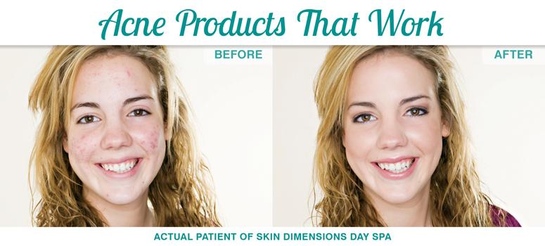 acneproducts-sdol.jpg